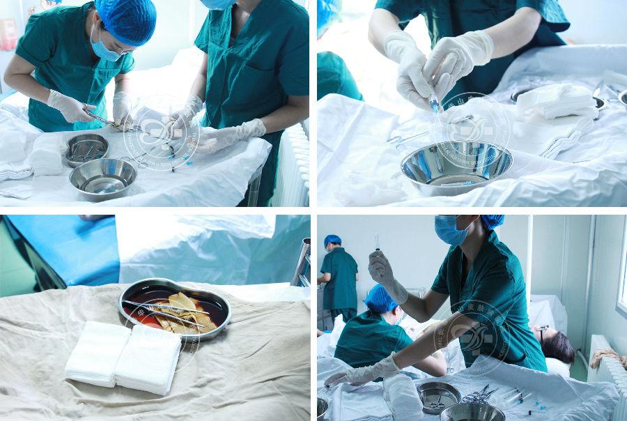长春博润皮肤病医院东北首台RECELL细胞再生术大面积祛白手术成功