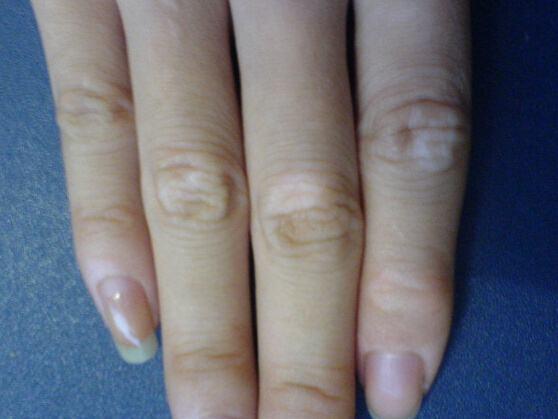 白癜风发病前的症状有哪些
