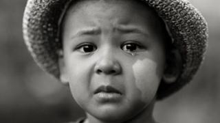 儿童白癜风在治疗时需要注意什么