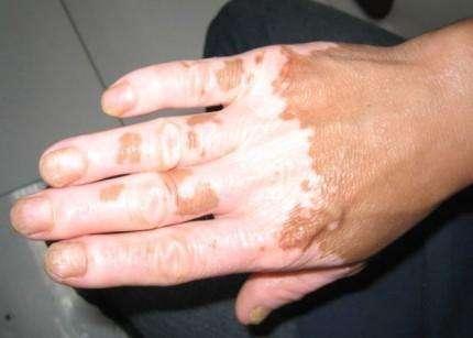 皮肤过敏会导致白癜风吗